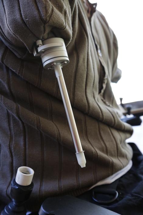 Integrum Training Arm Prosthetic Version 1.